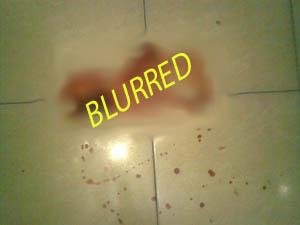 Ceceran darah dari kepala ibuku (Mohon maaf jika anda tidak kuat melihat darah).